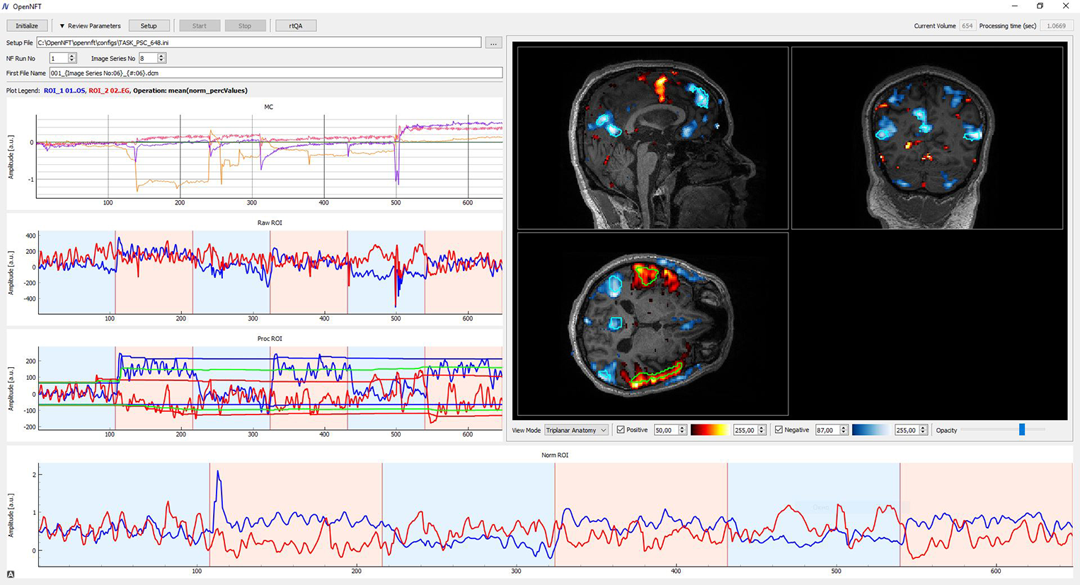 OpenNFT · Open Neurofeedback Training framework